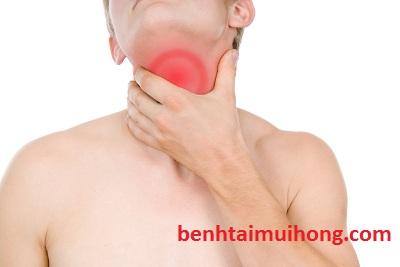 Một vài người bệnh viêm họng hạt hay có triệu chứng nào